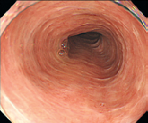 Figure 1 From Rare Primary Esophageal Paget S Disease