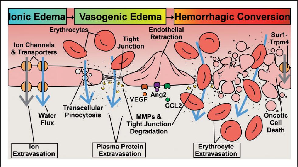 Figure 3 from Molecular pathophysiology of cerebral edema
