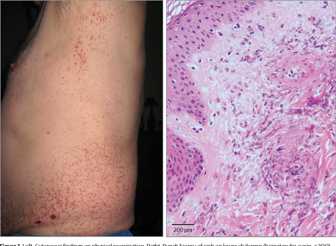 Figure 1 from A Man With a Nonblanchable Purpuric Rash