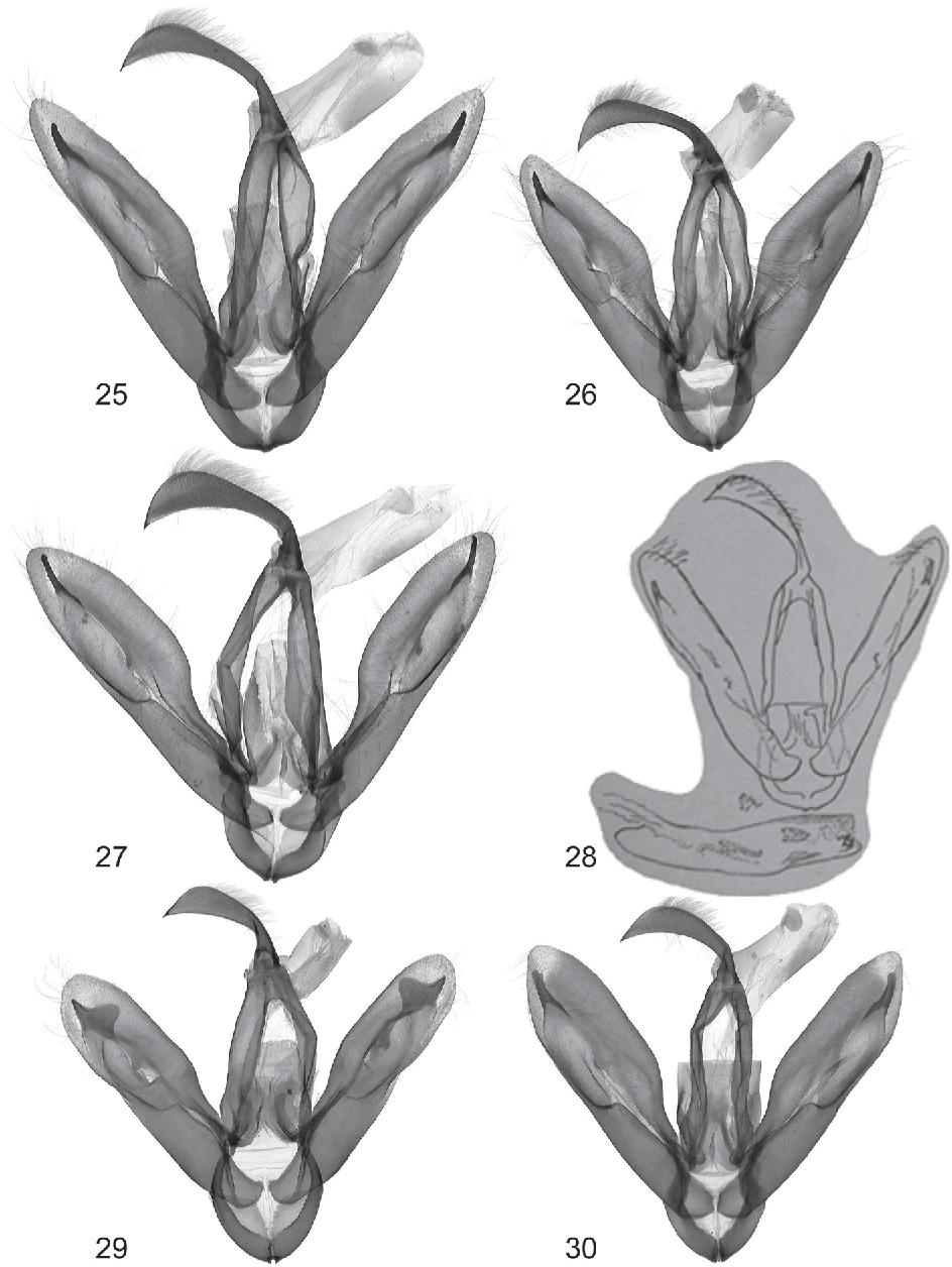 figure 25–30