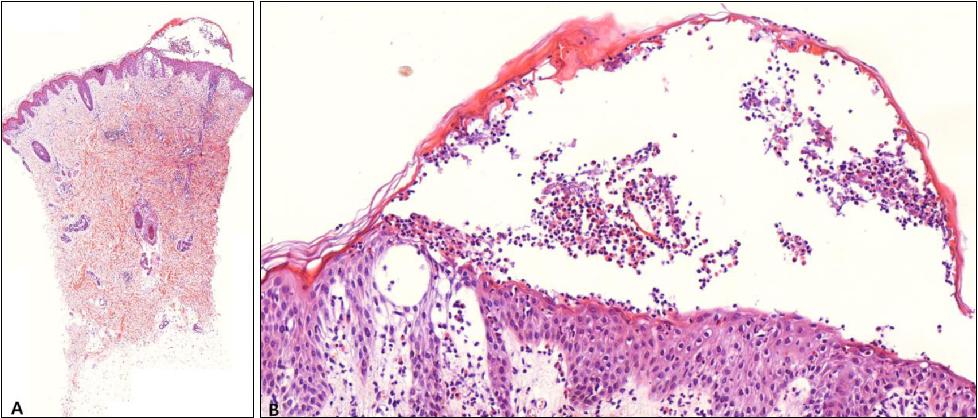 [PDF] Generalized Eosinophilic Pustular Folliculitis of ...