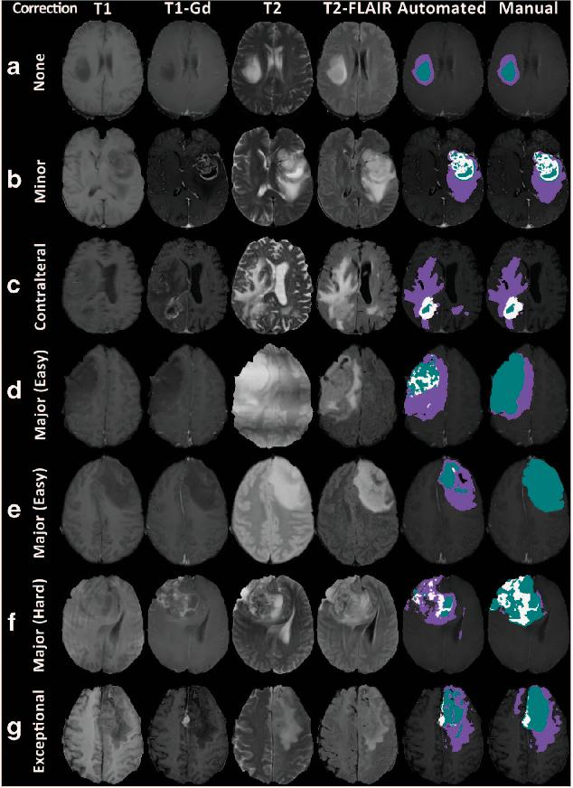 PDF] Advancing The Cancer Genome Atlas glioma MRI collections with ...