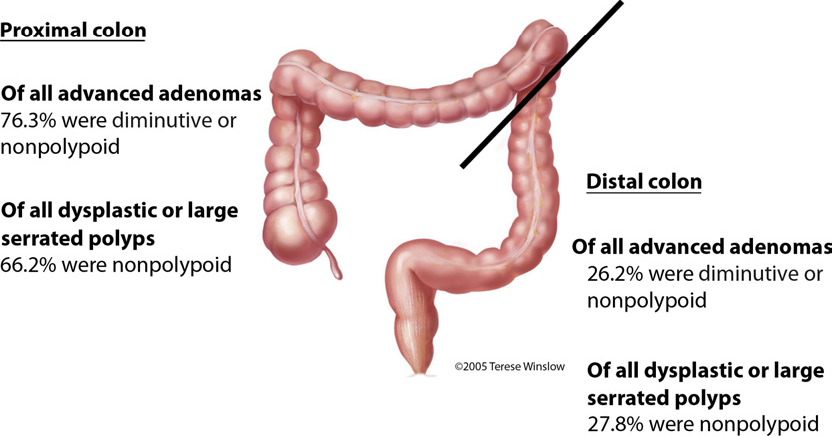 Figure 1 From Endoscopic Appearance Of Proximal Colorectal Neoplasms And Potential Implications For Colonoscopy In Cancer Prevention Semantic Scholar