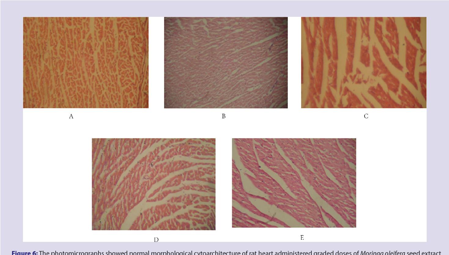 PDF] Toxicological evaluation of Moringa oleifera Lam seeds