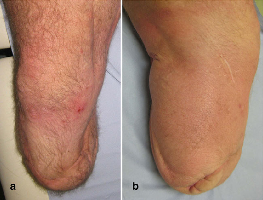Figure 2 From The Diverse Application Of Laser Hair Removal Therapy A Tertiary Laser Unit S Experience With Less Common Indications And A Literature Overview Semantic Scholar