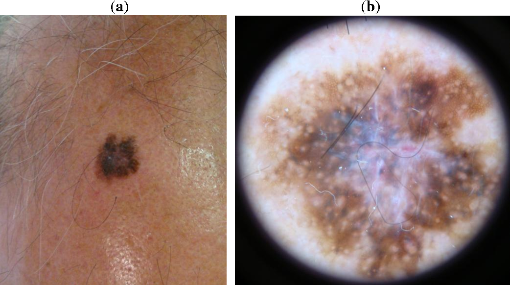 Figure 1 From Dermoscopy Of Scalp Melanoma Report Of Three