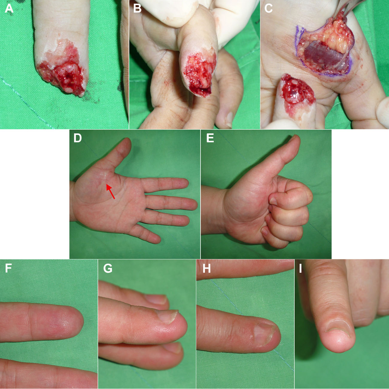 Regeneration and repair of human digits and limbs: fact and