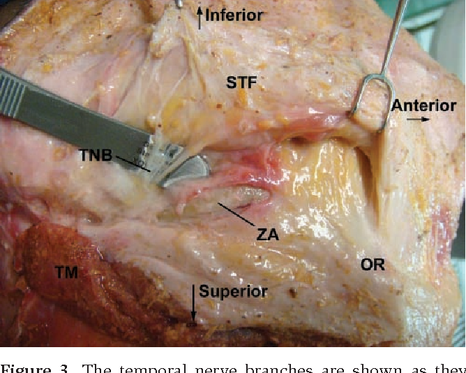 Figure 5 From The Sentinel Fat Pads The Relationship Of