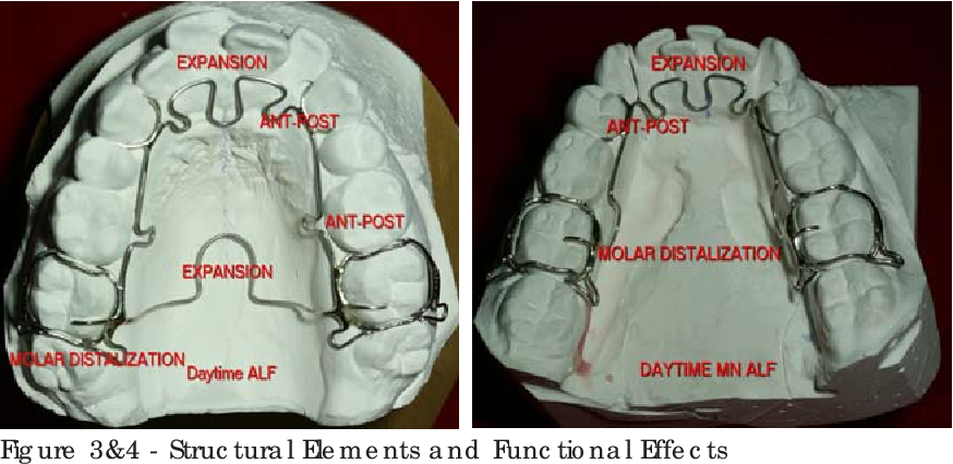 figure 3&4