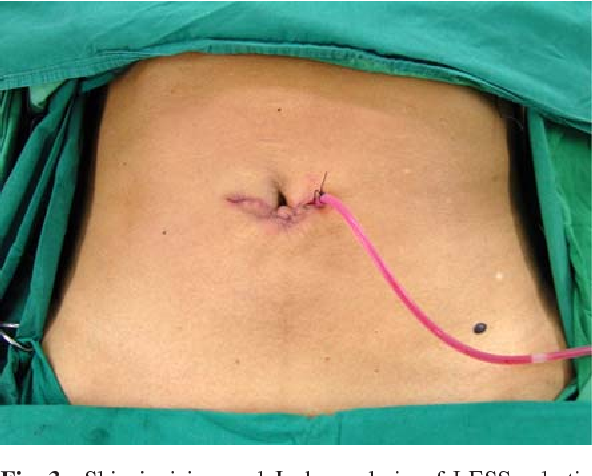 Figure 3 From Laparo Endoscopic Single Site Less Robotic Radical