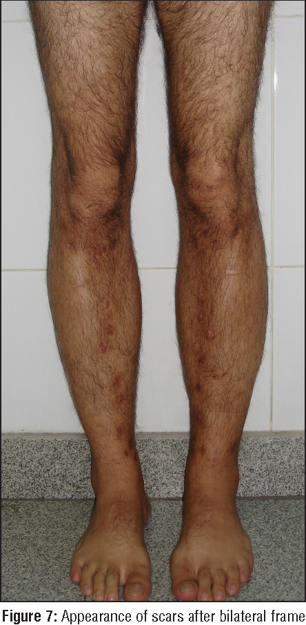 Figure 7 from Safe Cosmetic Leg Lengthening for Short