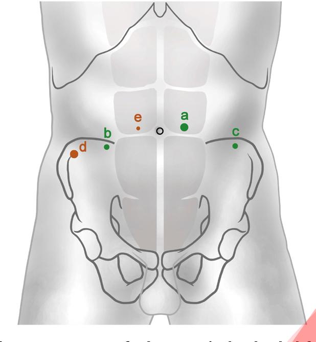 Pdf Robotic Assisted Laparoscopic Extended Pelvic Lymph Node