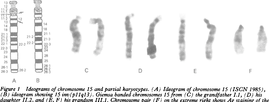Figure 1 from Angelman syndrome with a chromosomal inversion