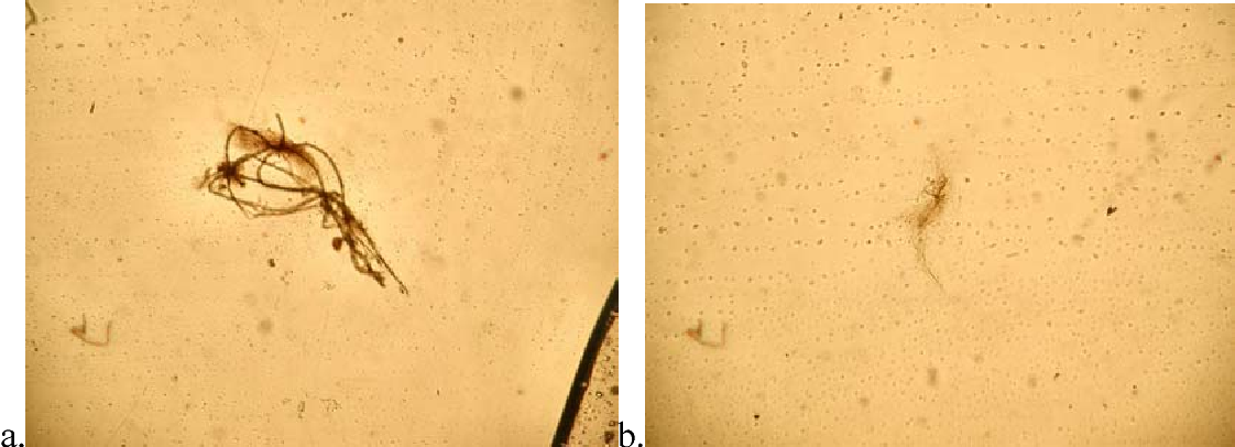 Figure 5. Sperm clusters viewed during surface area counts (40x; 3.3Mp Olympus). Samples were centrifuged again for 10min at 8000rpm with no change in sperm content. Samples were also spun for 10min at 1000rpm and 5min at 1000rpm with no