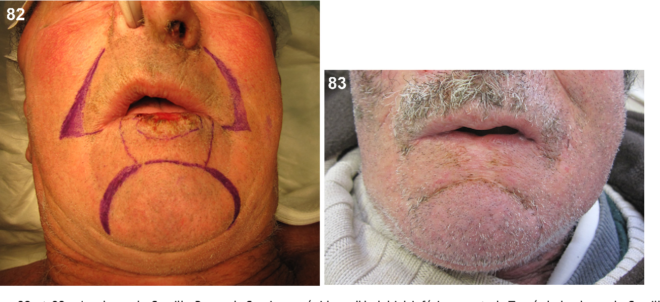 Figure 82 From Aesthetic Reconstructive Surgery Of The Lip