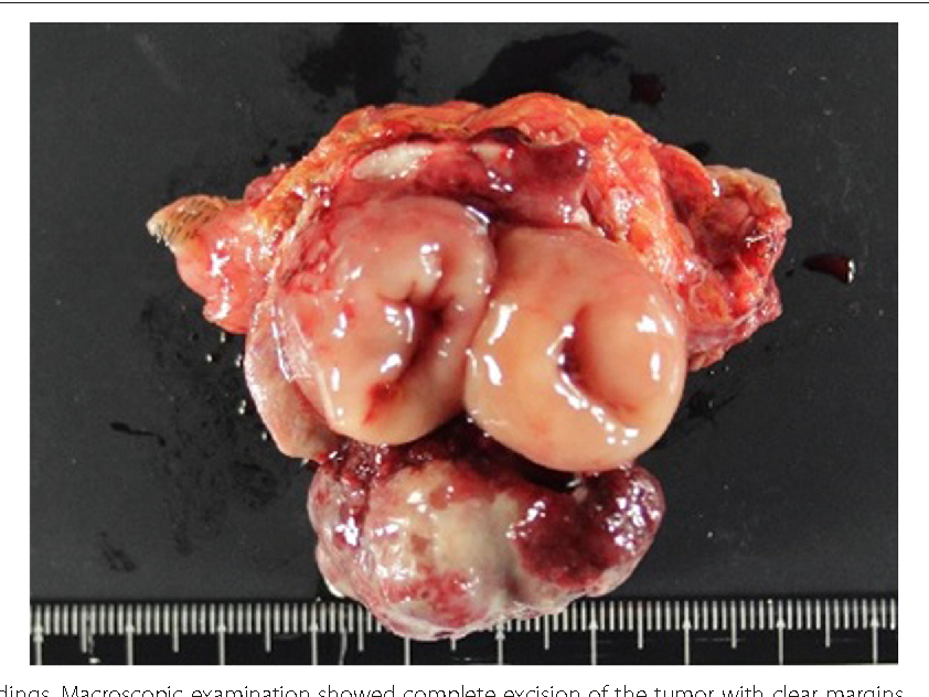 Figure 1 From Transverse Colon Cancer Occurring At A Colostomy Site 35 Years After Colostomy A Case Report Semantic Scholar