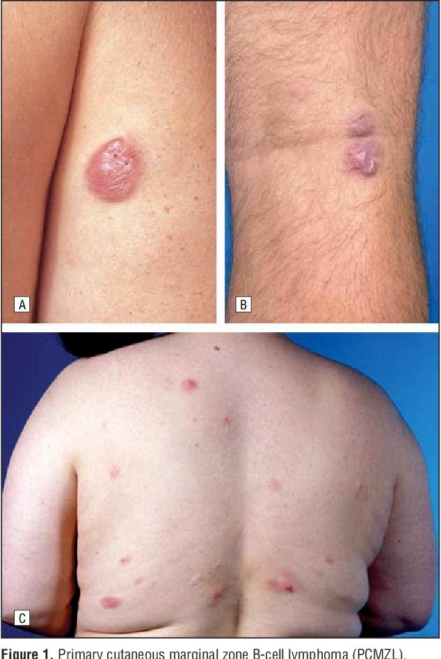 Cutaneous Lymphomas (Basic and Clinical Dermatology)