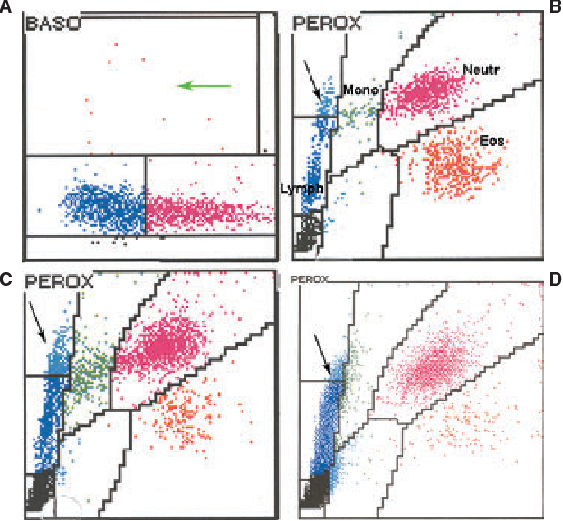 Figure 4 from Errors in basophil enumeration with 3