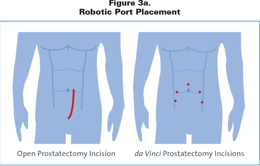 Pdf Care Of The Patient Undergoing Robotic Assisted Prostatectomy