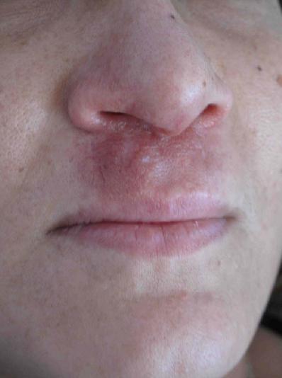 septum nasal en linea media