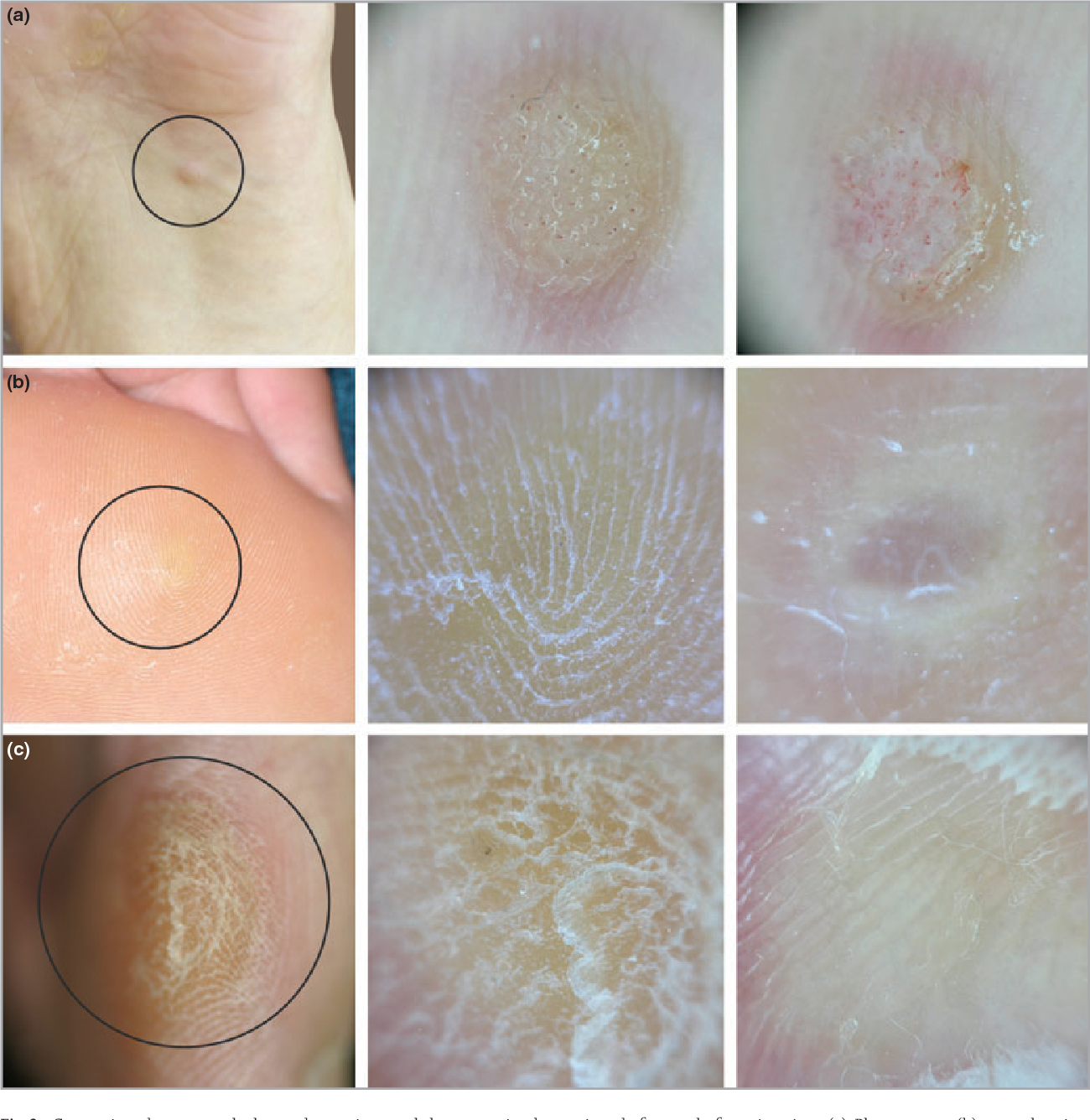 Figure 2 From Differential Diagnosis Of Plantar Wart From Corn Callus And Healed Wart With The Aid Of Dermoscopy Semantic Scholar