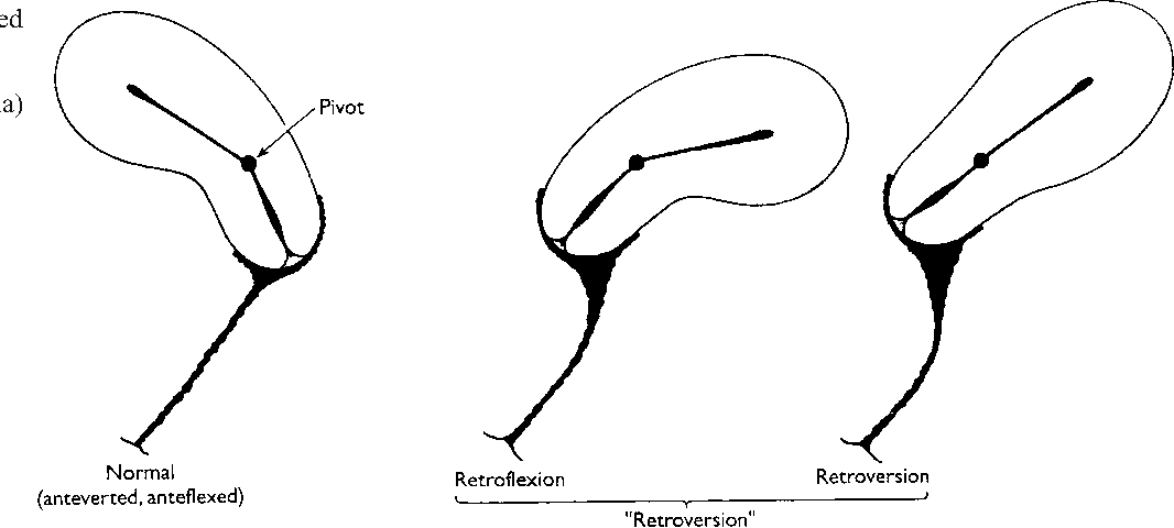The retroverted uterus: ignored to date but core to prolapse