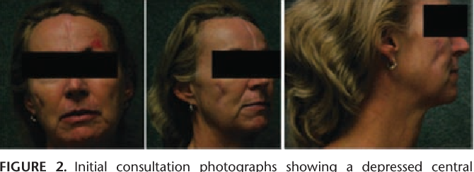 Figure 2 from The reconstructive challenges and approach to