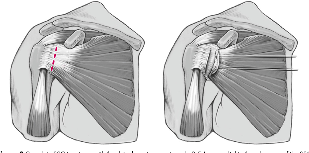 Figure 3 from Subscapularis dysfunction following anterior