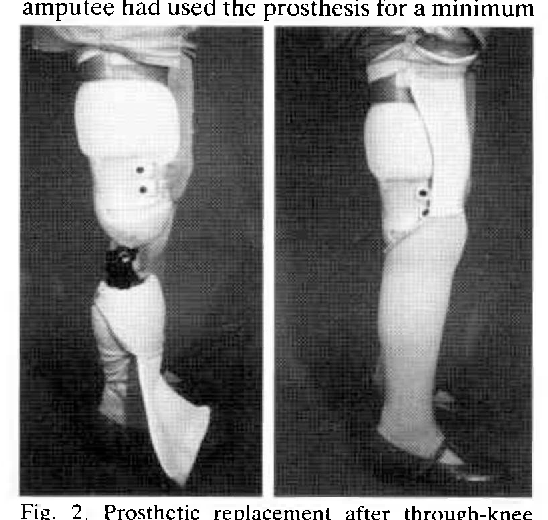 Function after through-knee compared with below-knee and
