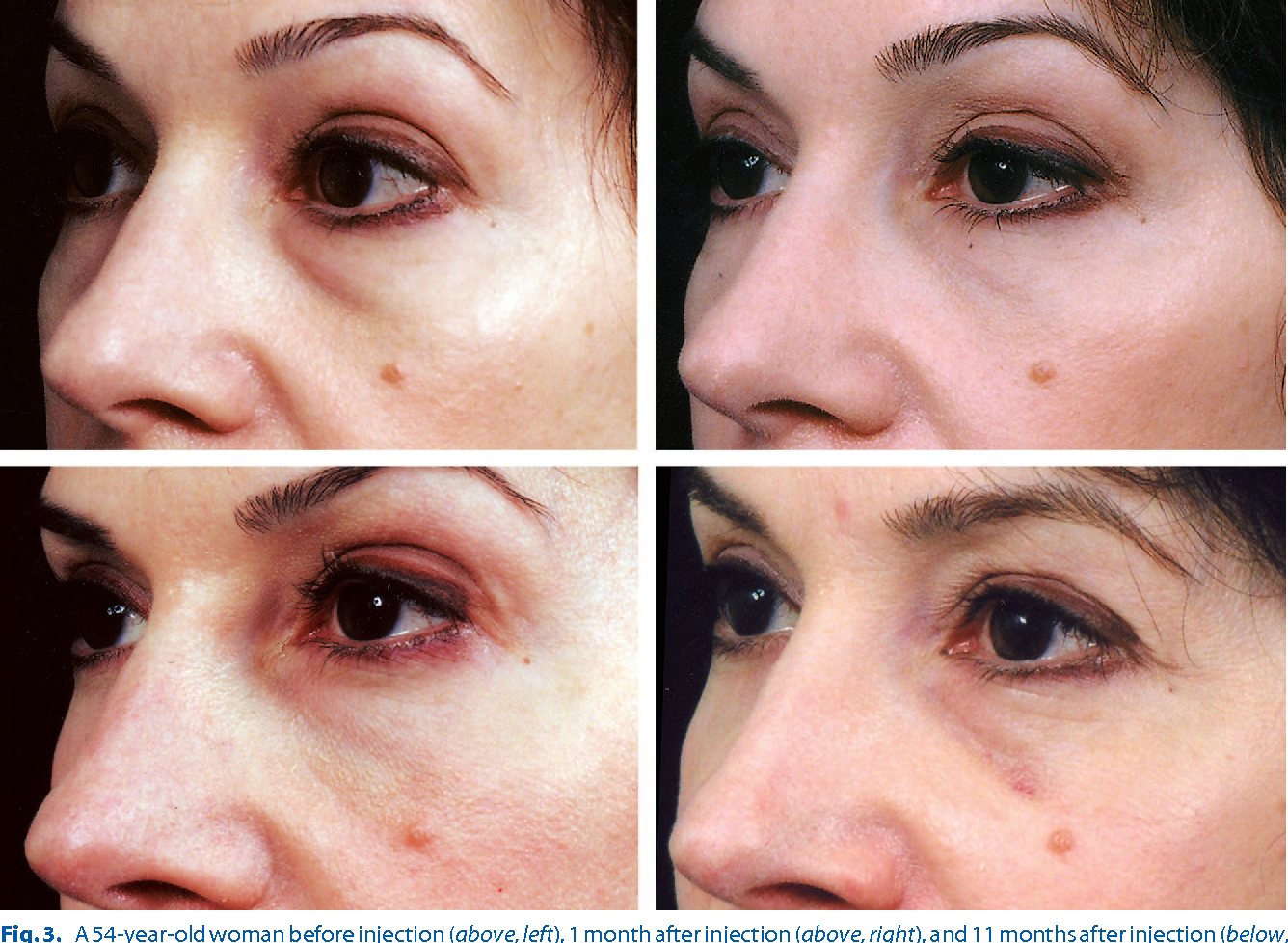 Figure 3 from Hyaluronic acid injections for correction of