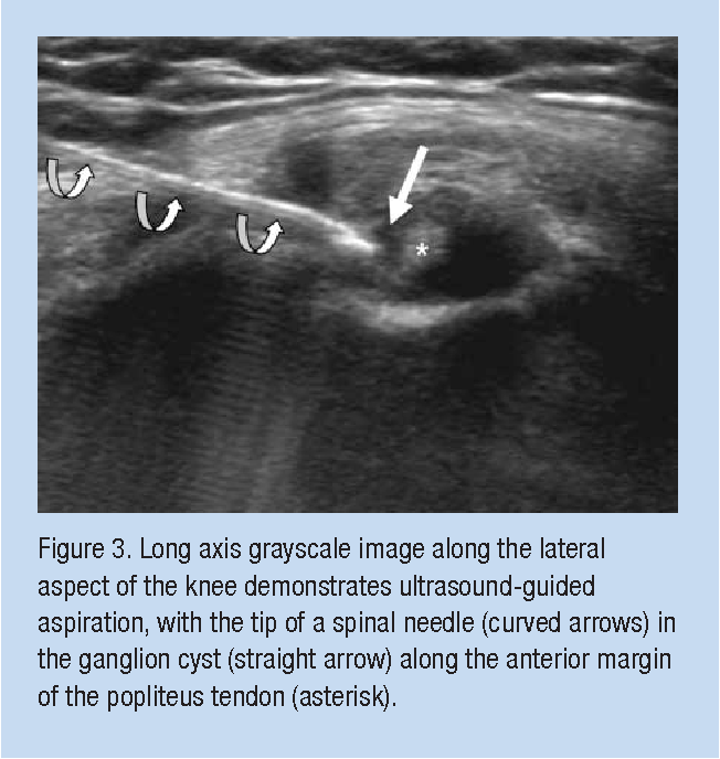 Symptomatic Ganglion Cyst of the Popliteus Tendon Treated ...