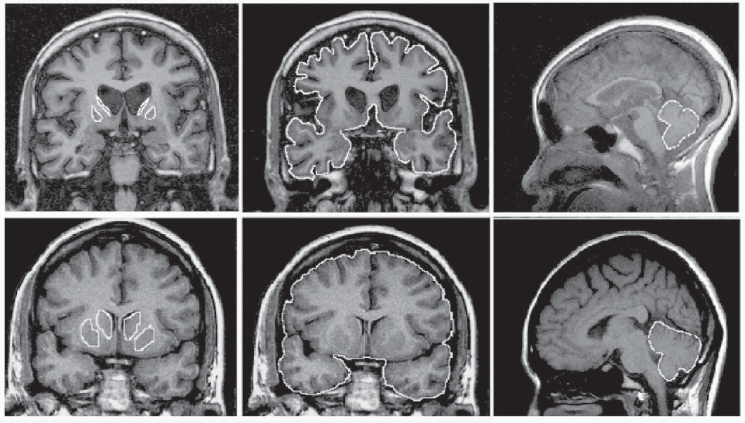 Figure 1 From Striatal And Extrastriatal Atrophy In Huntington S Disease And Its Relationship With Length Of The Cag Repeat Semantic Scholar