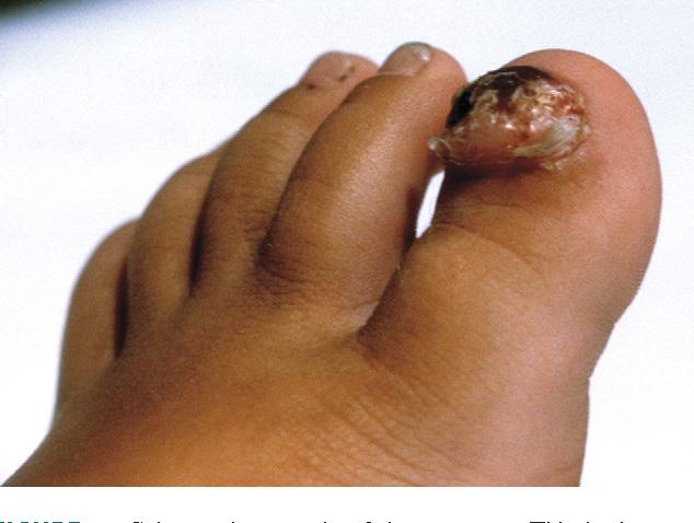 Figure 6 from Benign subungual tumors  - Semantic Scholar