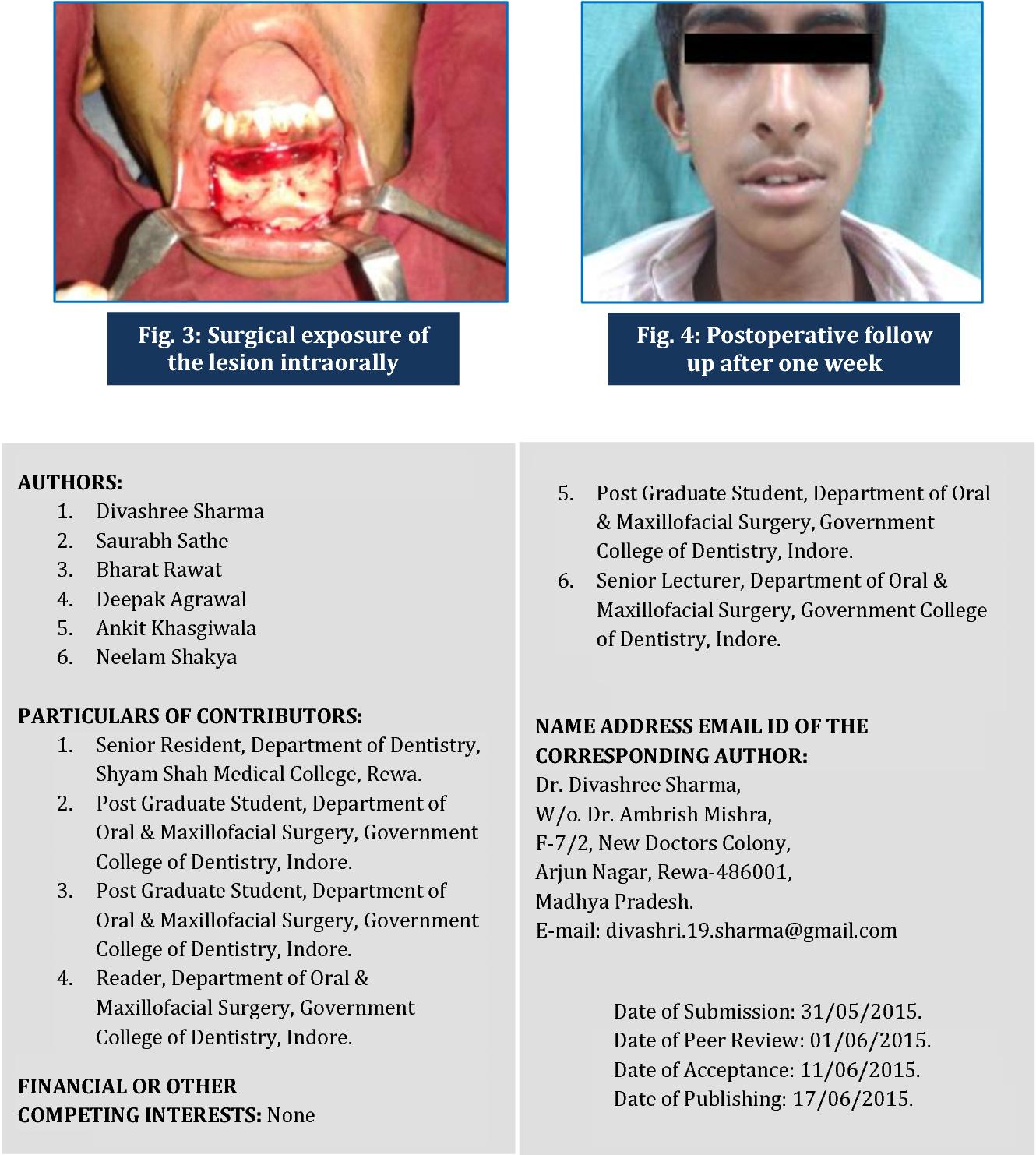 PDF] A STUDY ON PERI P HERAL OSTEOMAS OF THE MAXILLOFACIAL