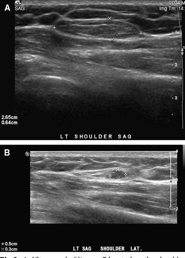Lipomas treated with subcutaneous deoxycholate injections