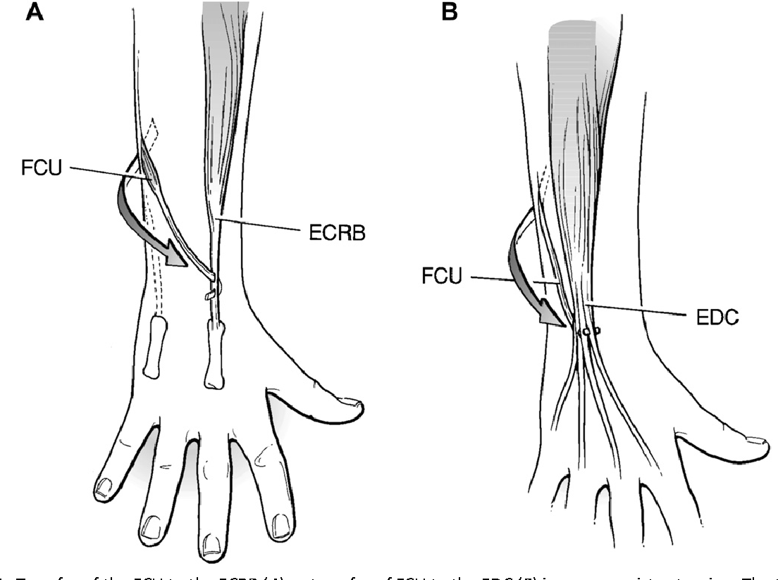 Figure 4 from Surgery of the upper extremity in cerebral