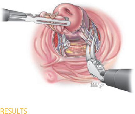 Figure 5 From Transvesical Robotic Radical Prostatectomy