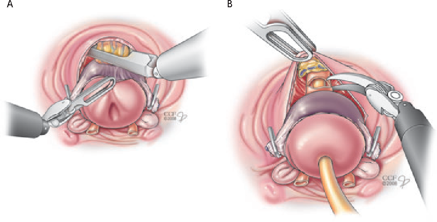 Figure 6 From Transvesical Robotic Radical Prostatectomy