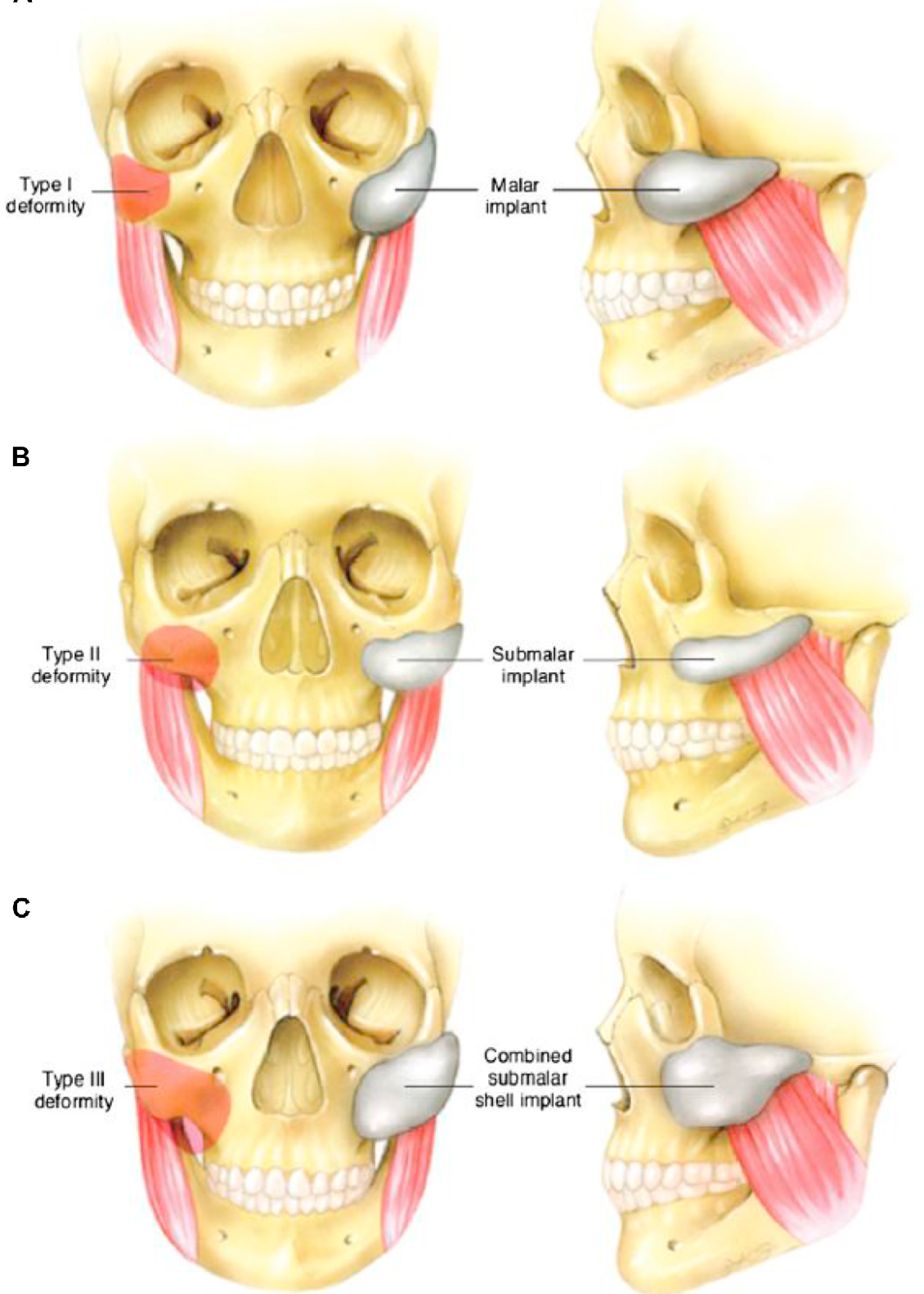 Figure 4 from The role of fillers in facial implant surgery