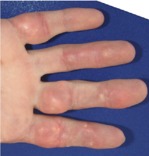 Figure 2 from Calcinosis cutis of juvenile dermatomyositis ...