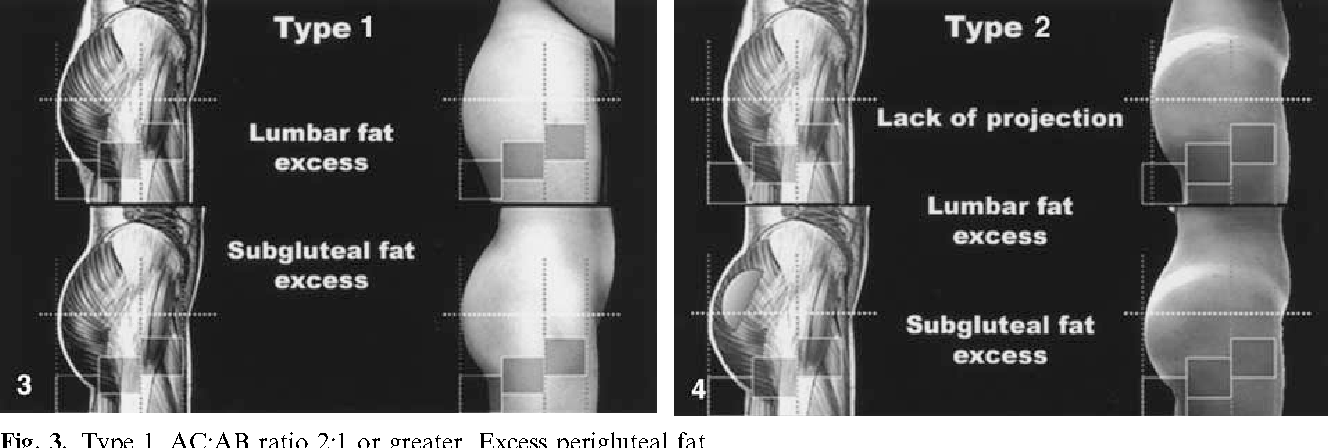 Figure 3 from What Makes Buttocks Beautiful? A Review and