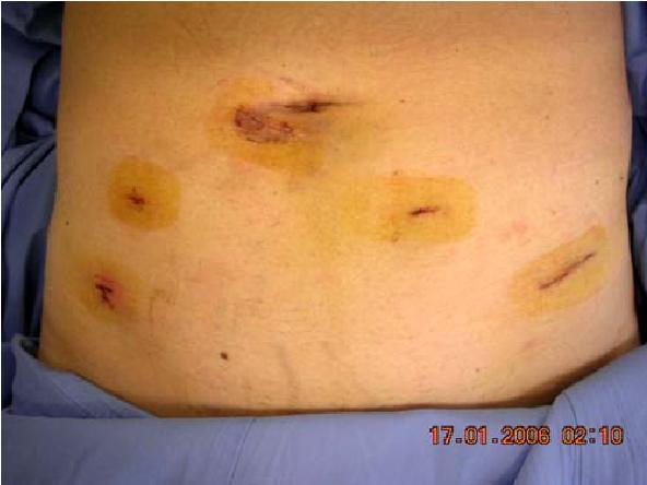 Pdf Endoscopic Extraperitoneal Radical Prostatectomy Eerpe A