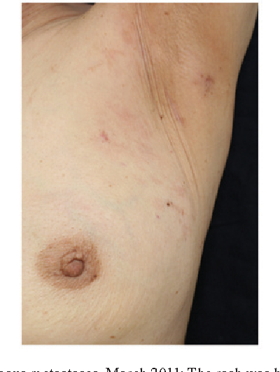Figure 6 From Efficacy Of Lapatinib Monotherapy On Occult Breast