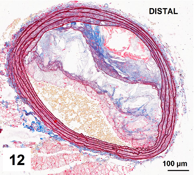 predicción El diseño tallarines  Figure 12 from Combined orcein and martius scarlet blue (OMSB) staining for  qualitative and quantitative analyses of atherosclerotic plaques in  brachiocephalic arteries in apoE/LDLR−/− mice | Semantic Scholar