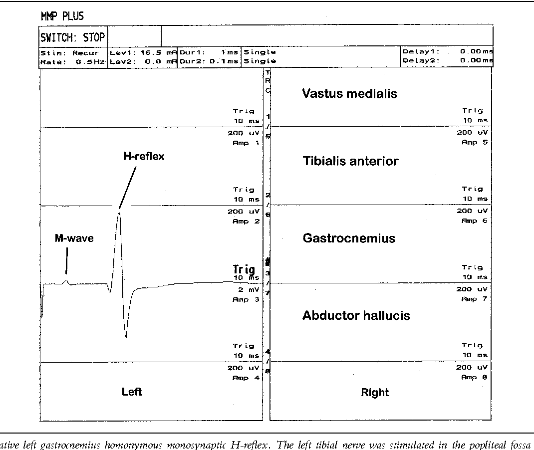 Intraoperative Applications Of The H-Reflex And F-Response