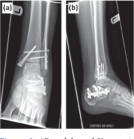 Figure 3 from Combined ipsilateral calcaneal and bimalleolar ankle fractures  treated by open reduction and internal fixation   Semantic Scholar