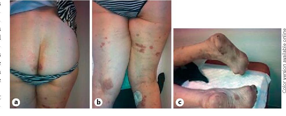 Figure 1 From Tocilizumab Induced Psoriasiform Rash In Rheumatoid Arthritis Semantic Scholar