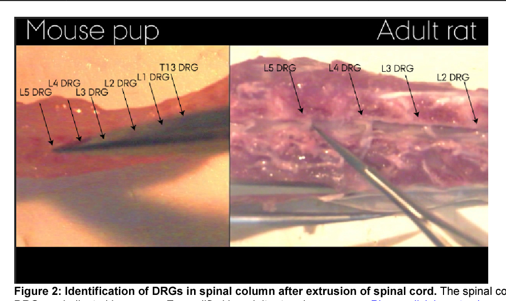 PDF] Hydraulic Extrusion of the Spinal Cord and Isolation of