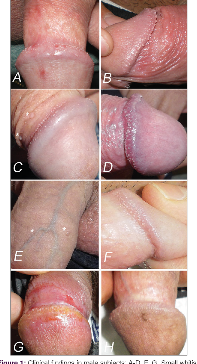 Pearly penile papules on shaft treatment