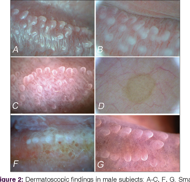 Papules go away pearly penile Pearly Penile